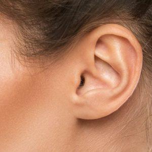 Lavaggio Auricolare - orecchio