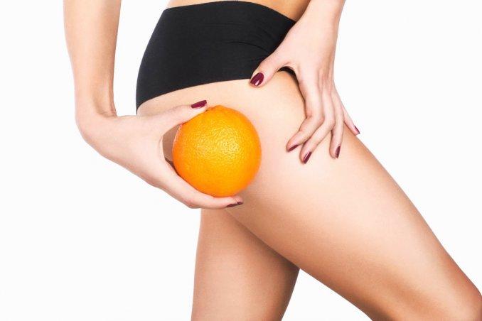 Cellfina Treatment - cellulite, pelle a buccia d'arancia