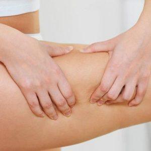 parte del corpo colpita da ritenzione idrica e curabile con carbossiterapia