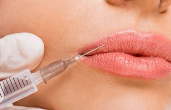 Esecuzione di un trattamento filler labbra e antirughe