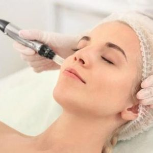esecuzione trattamento needling antiaging