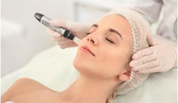 esecuzione trattamento needling antiaging