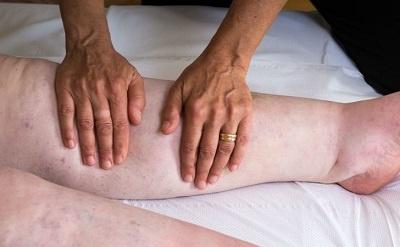 trattamento del linfedema